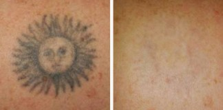What You Need to Know When You Want to Remove a Tattoo